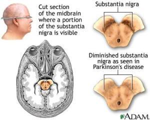 PD_brain